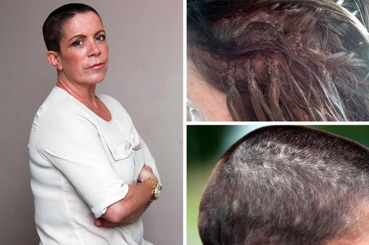 Mum Of Two Forced To Shave Head After Hair Extensions Were Put In
