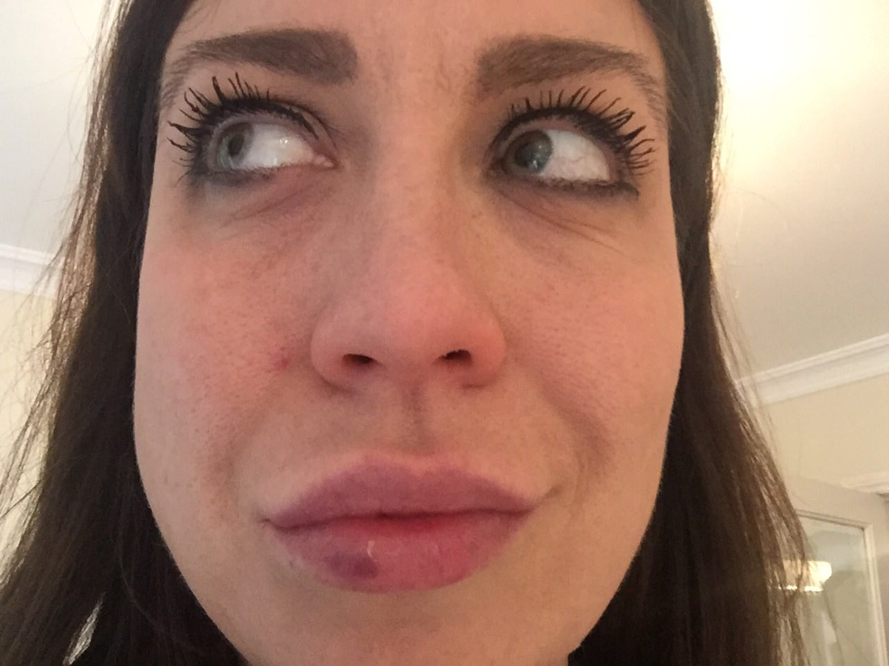 I got my lips enhanced with filler for the first time and