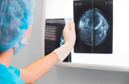 Breast cancer screening scandal: 100s of women may have died