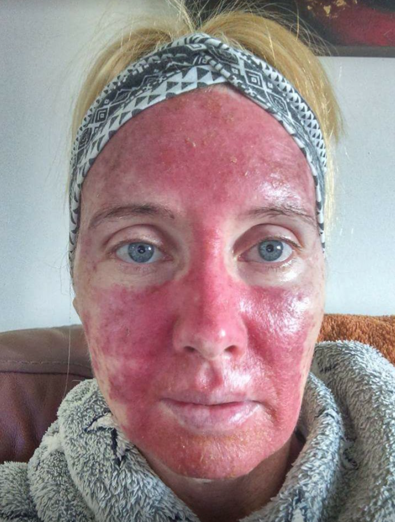Dublin Woman Learned She Had Skin Cancer After Being Diagnosed With Psoriasis Her Ie
