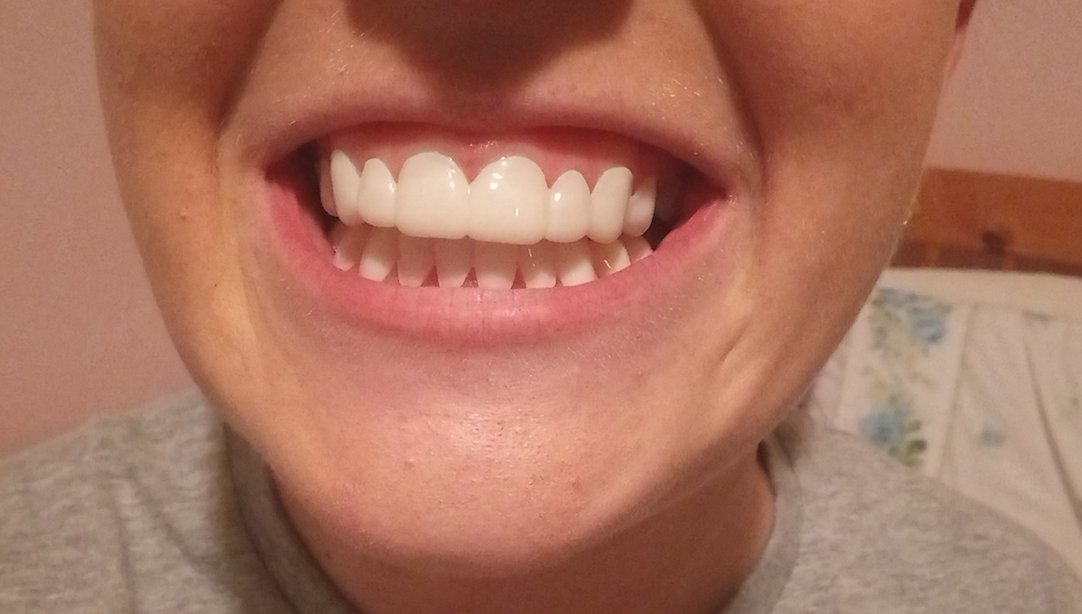 I wore clip-in veneers for a day - here's what I really