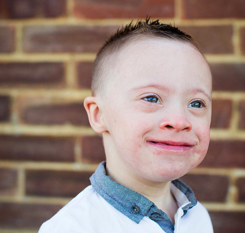 This gorgeous boy with Down Syndrome is the new face of
