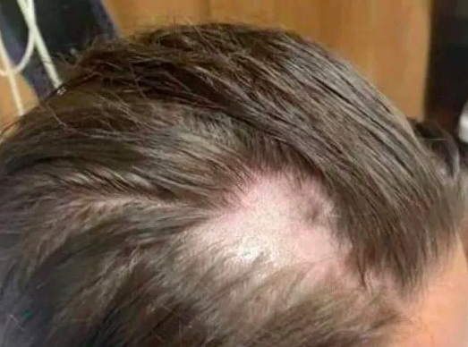 Woman loses hair after shampoo 'mixed with hair removal cream'