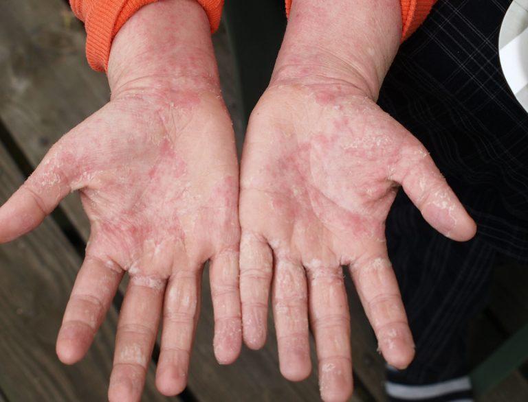 eczema awareness month