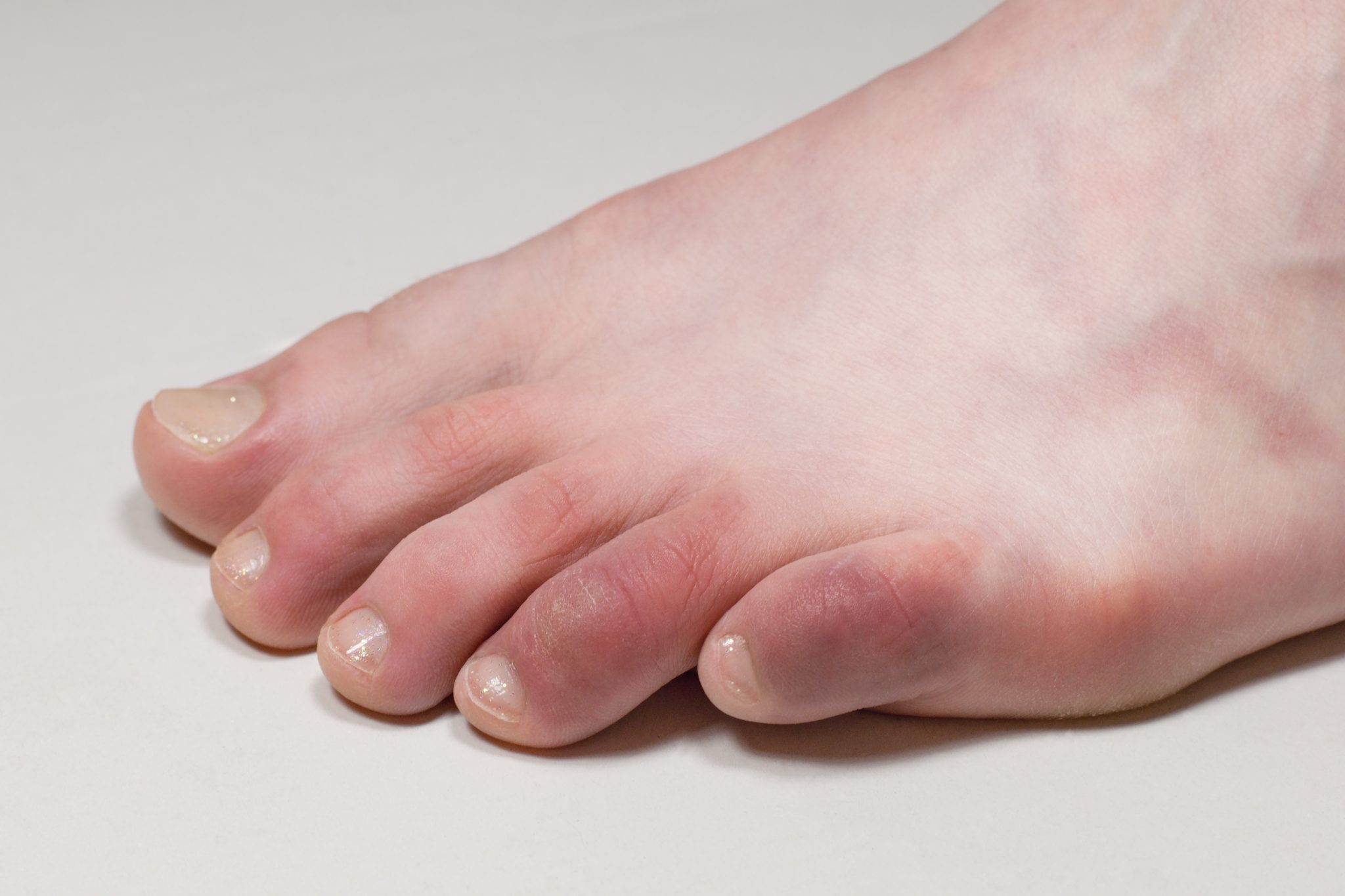 A foot with some redness and swelling on the toes.
